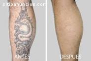 Eliminación rápida de los tatuaje