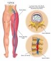 Como Curar El dolor Ciatico Naturalmente