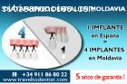Implantología dental en Moldavia