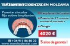 Prótesis fija sobre implantes