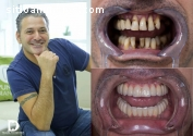 All on 6 - dientes fijos sobre implantes