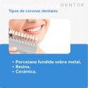 Implantes dentales en Tijuana - DENTOK M